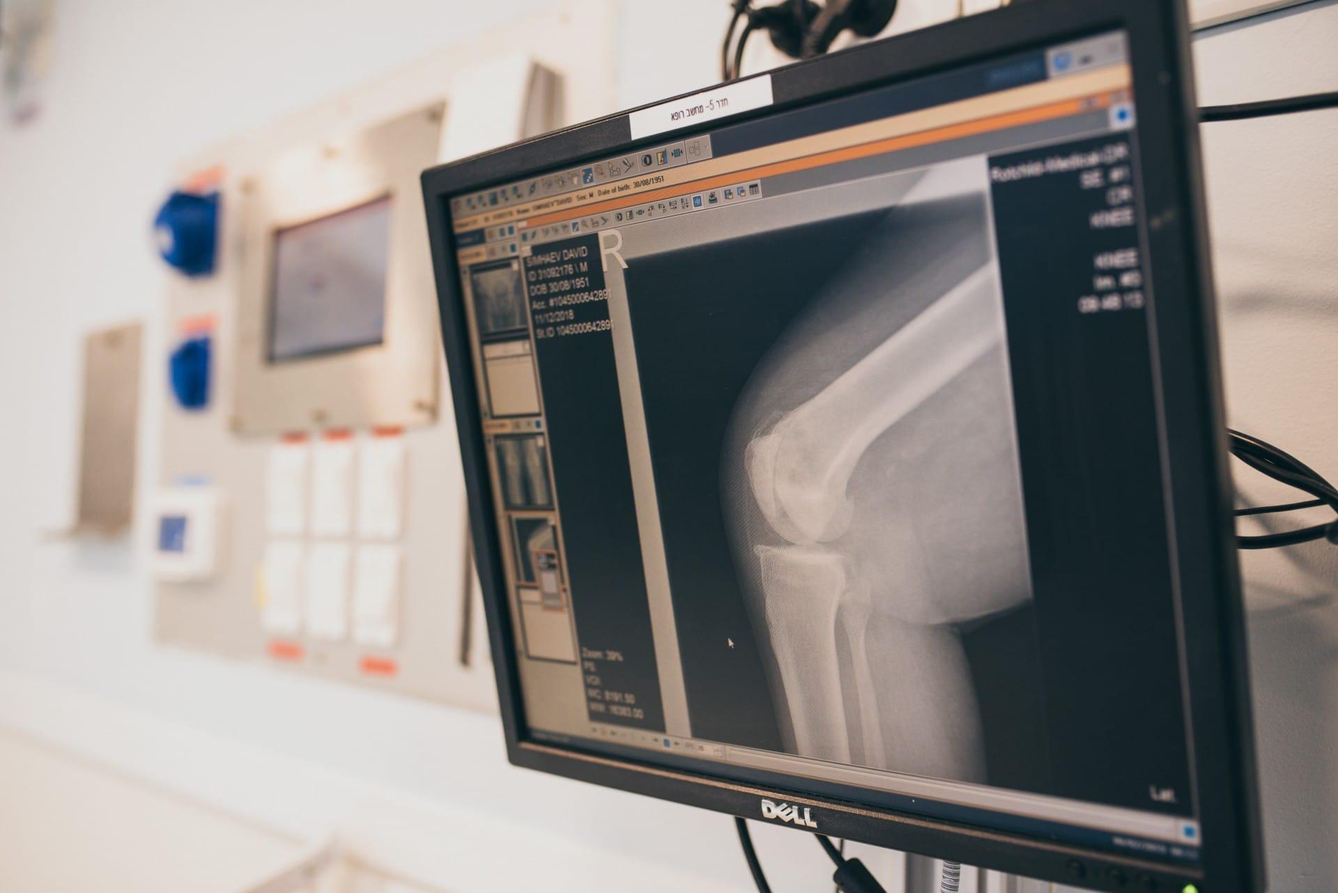פירוט הליך ניתוח החלפת מפרק ברך
