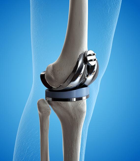 כאבי מפרקים – גורמים ודרכי טיפול